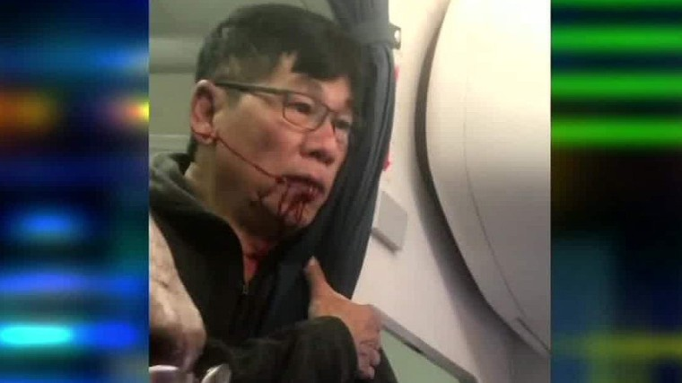 170410222008-united-flight-passenger-video-after-incident-john-klaassen-intv-ctn-00003430-super-169